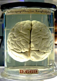 Not one of the actual brains in question . . .